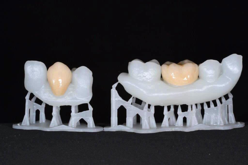 imprimante 3d résine dentiste médical