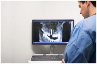 résine-dentaire-formlabs