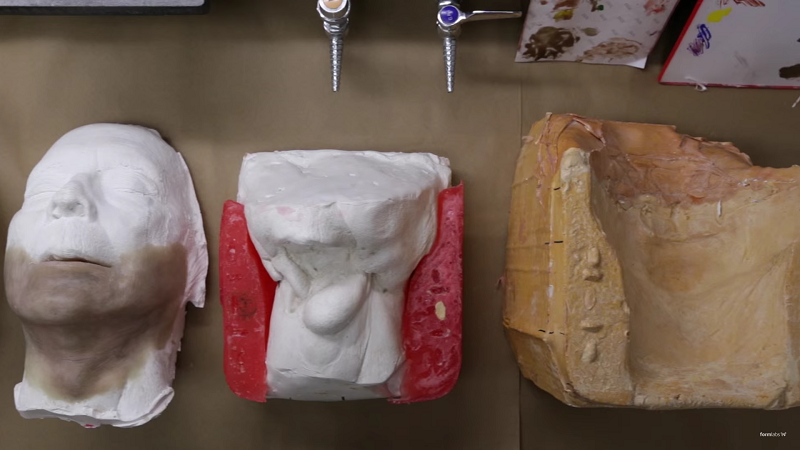 impression 3D prothèse
