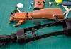 Intérêts des prothèses imprimées en 3D