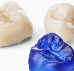 3D printer teeth